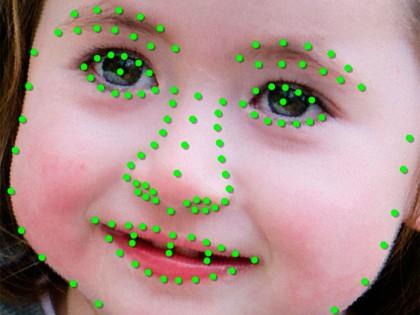 الذكاء الإصطناعي يحدد الأضطرابات الوراثيةعن طريق مسح الوجة